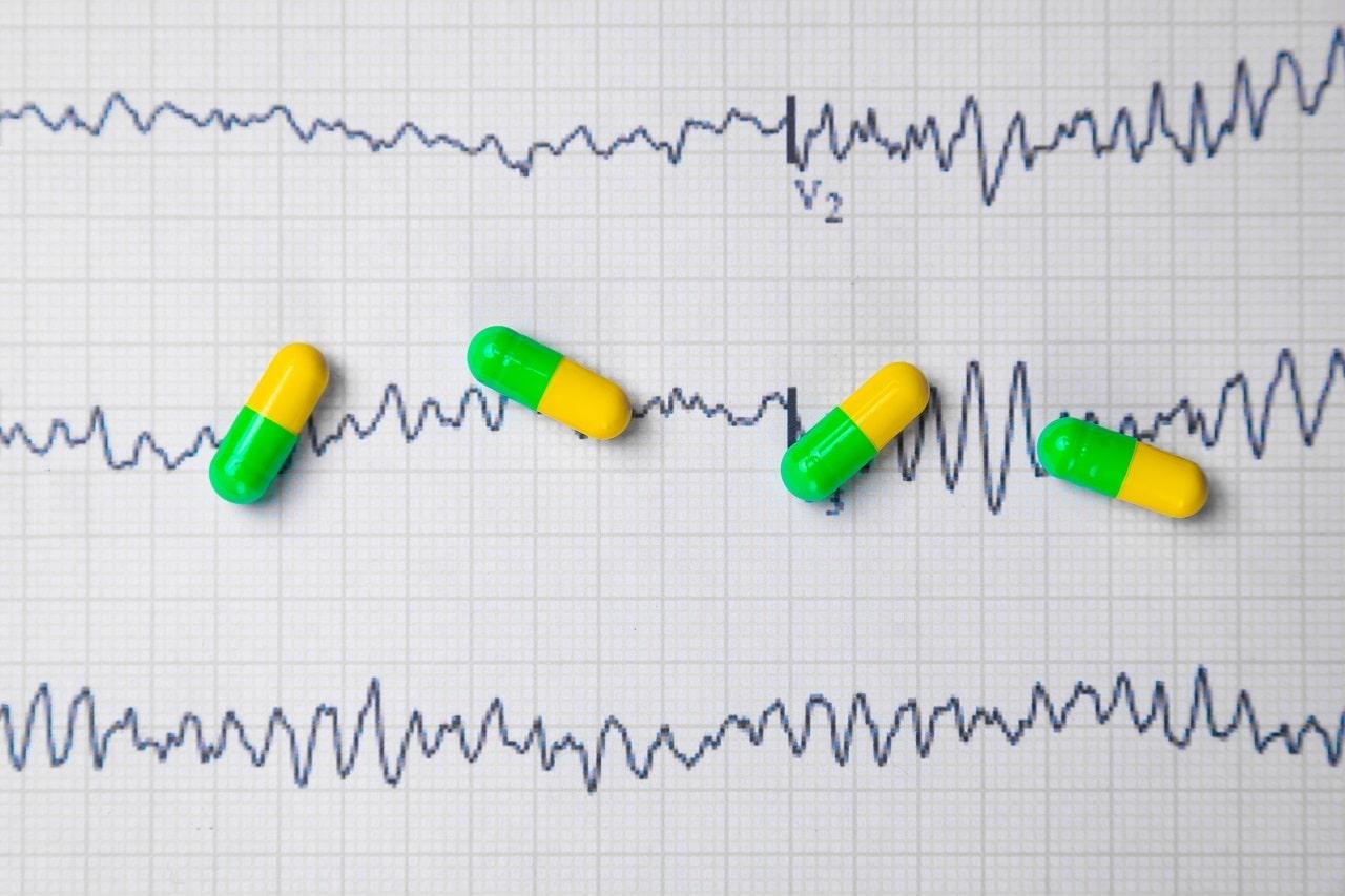 Diagnóstico rápido para pymes. Áreas claves